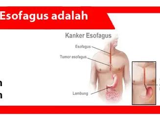 Esofagus-Pengertian-Ciri-Penyebab-Pengobatan-Pencegahan